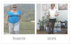 inainte-dupa-chirurgie-bariatrica-1