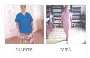 inainte-dupa-chirurgie-bariatrica-2